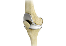 Total Knee Replacement