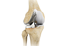 Unicompartment Knee Replacement